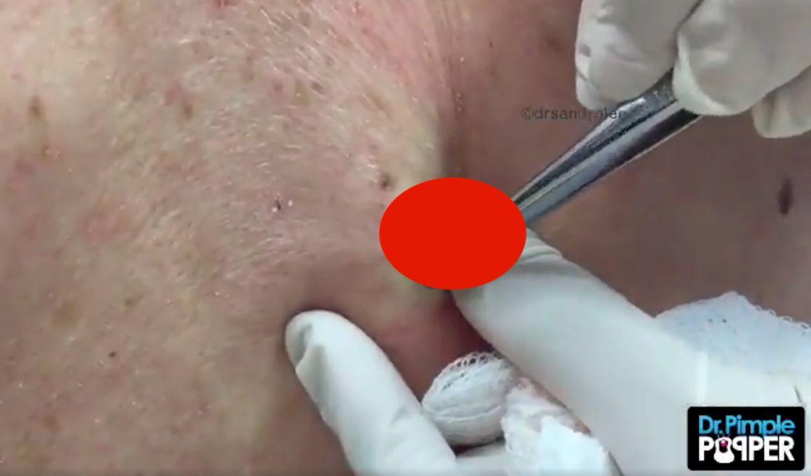 Dr  Pimple Popper Removes A Bulging 'Rock' Blackhead