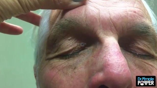 Dr Pimple Popper Watch This Never Ending Jawbreaker