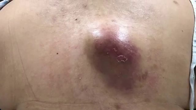 Dr Pimple Popper Shocking Video Of An Abscess Waterfall