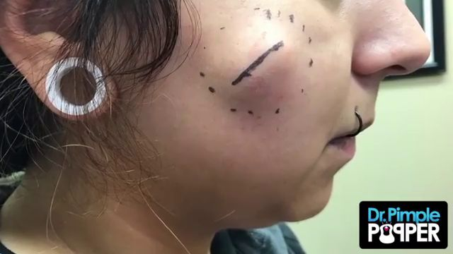 Dr Pimple Popper See This Monster Cheek Cyst Explode