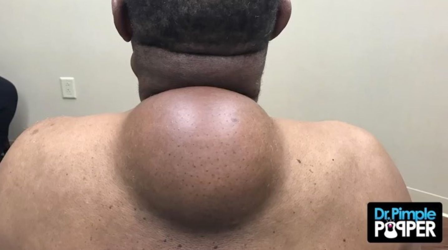 Dr Pimple Popper The Mother Of Them All See The