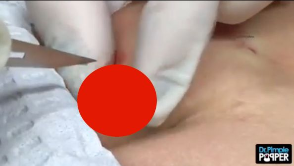 Pimple Popper Video Dr Pimple Popper Pops Cyst And