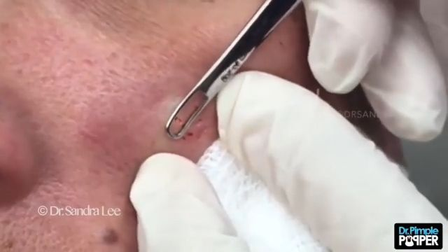 Dr  Pimple Popper -- See The Special 'Blackhead and