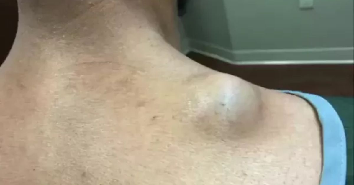 Dr. Pimple Popper -- Watch Her Squeeze Out A 'Meatball ...